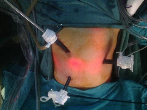 Kapalı Karaciğer Ameliyatı